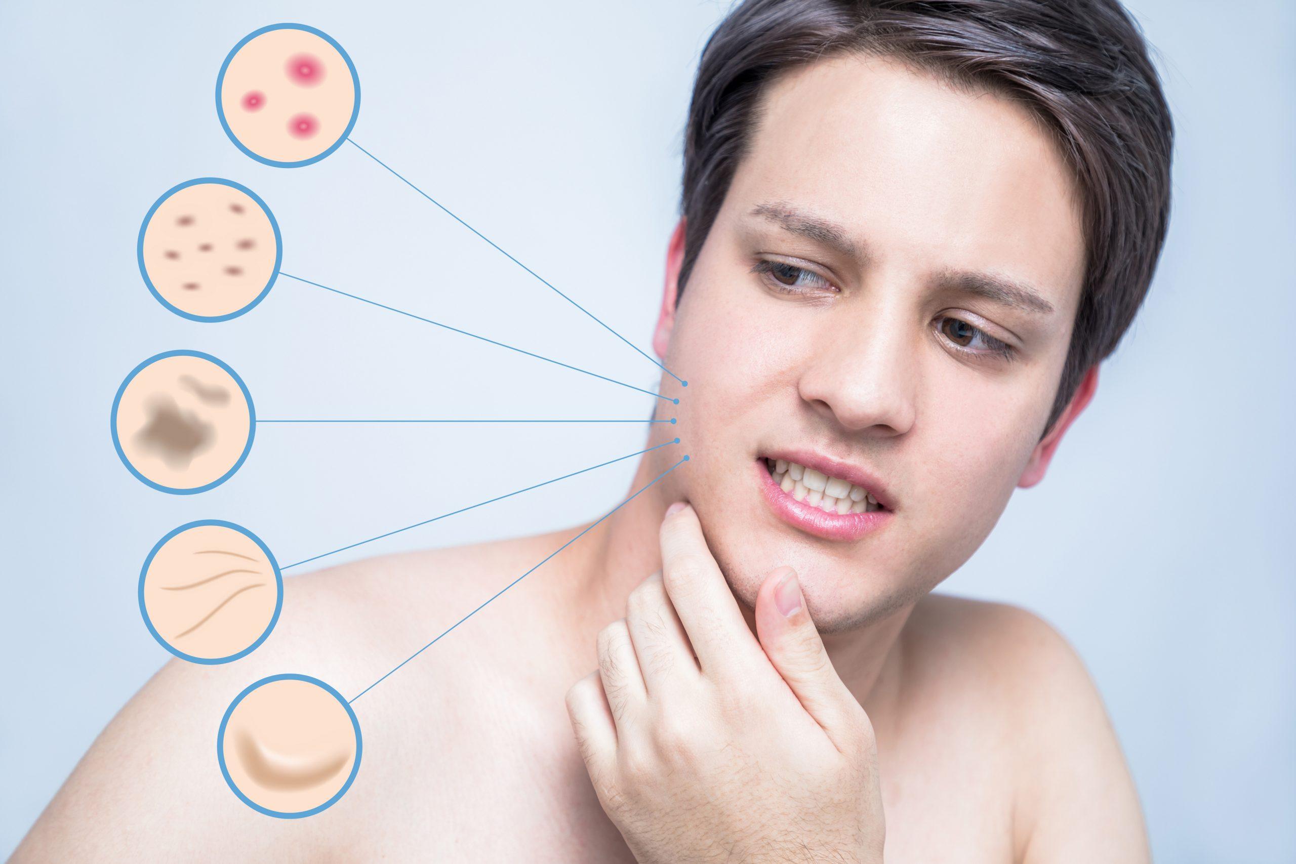 les différents types de peau, beauté homme, labarbiche